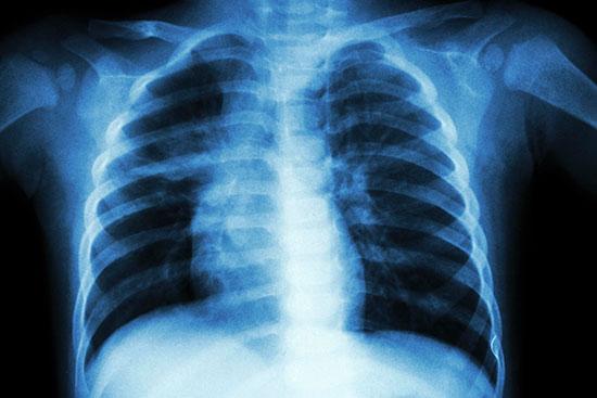 x-ray-istock-globaltechmagazine